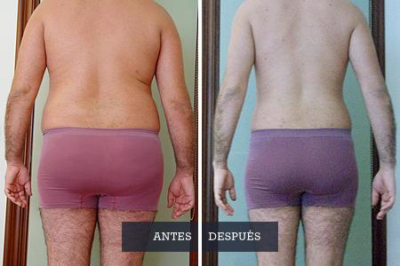obesidad-tratamientos_Dra-Casquero