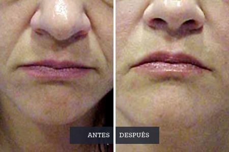 Remodelación facial, Dra. Casquero