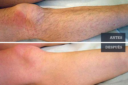 Depilación definitiva en piernas, Dra. Pantxike Casquero