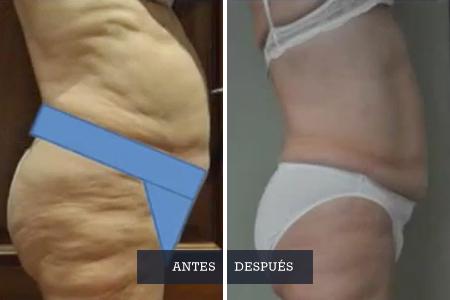 obesidad-y-celulitis_tratamientos_Dra-Casquero00
