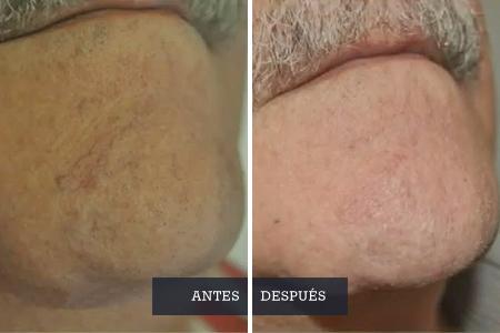 teleangectasias-con-laser-diodo_Dra-Pantxike-Casquero